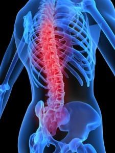 Wervelkolom-rugpijn